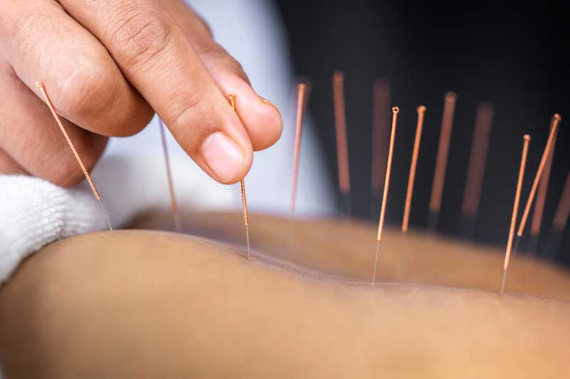 acupuncture pressure points
